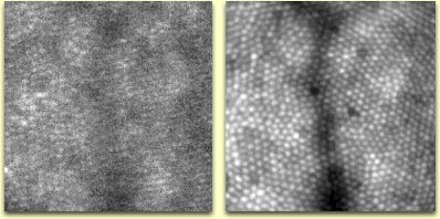 [Two images of a retina.  On the left is a smudgy image, on the right is a much sharper image.]